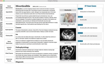 Emergency Radiology - Learn MRI and CT Scan Imaging Cases スクリーンショット4